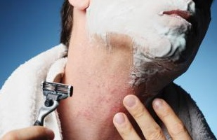 dealing with shaving irritation